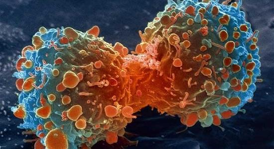12 Consells per a previndre el càncer
